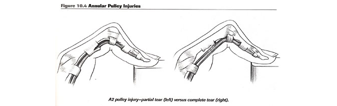 injury-a2-finger-anatomy-2